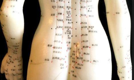 acupuncture #2